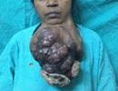 Người phụ nữ mang khối u nặng hơn cả em bé sơ sinh dưới cằm