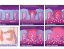 Vi khuẩn đóng vai trò quan trọng trong việc thúc đẩy ung thư ruột kết