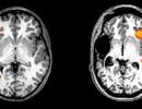 Trẻ em có thể khôi phục khả năng ngôn ngữ sau đột quỵ não trái