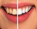 5 cách ngăn ngừa sâu răng hiệu quả, toàn diện