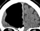 Nhập viện vì đau đầu, kinh ngạc thấy trong não có khoảng trống lớn