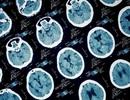 Chẩn đoán sai, cậu bé 13 tuổi tử vong do nhiễm trùng xoang lan lên não