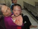 Bé trai 2 tuổi nghi bị bạo hành phải nhập viện