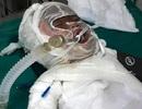 Đau đớn 2 phận người bỏng nặng nguy kịch trên giường bệnh