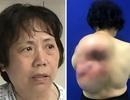 Người phụ nữ 9 năm cõng khối u gần 10 kg trên lưng