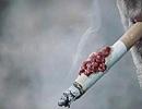 Gần 97% bệnh nhân ung thư phổi có hút thuốc