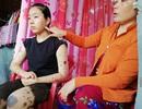 Khốn khổ bé gái lớp 8 mắc bệnh rối loạn sắc tố da