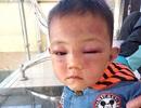 Không khởi tố hình sự bố dượng bạo hành cháu 2 tuổi phải nhập viện
