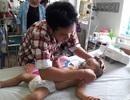 Cháu bé gần 20 tháng tuổi bị ong đốt gần 1.000 vết