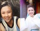 Hot girl Kiên Giang nổi đình nổi đám nhờ niềng răng suốt 4 năm