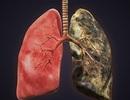 Chỉ dấu sinh học giúp chẩn đoán sớm ung thư phổi