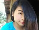Choáng với khối u mắt khổng lồ của cô gái 16 tuổi xinh đẹp