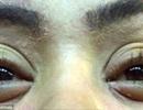 Nối mi, 12 phụ nữ bị bọ ve bám trên mí mắt