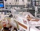 Bé 14 tháng tuổi bị khỉ cắn toạc da đầu, lún xương sọ
