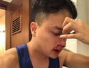 Cao Thái Sơn phải đi cấp cứu lúc nửa đêm vì chảy máu mũi