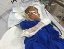 Khởi tố kẻ nghi ngáo đá chém bé trai 10 tuổi trọng thương