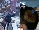 Sạc dự phòng phát nổ dưới gối khiến người đàn ông cháy rụi một phần tóc