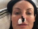 Nhờ đỉa hút máu, cứu được chiếc mũi phẫu thuật thẩm mỹ hỏng