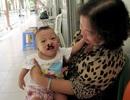 Phẫu thuật sứt môi hở hàm ếch: 80% để lại di chứng
