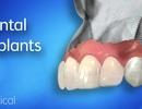 Trồng răng Implant và những điều bạn cần lưu ý