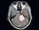 Đau đầu, mất thính lực vì khối u như quả trứng trong não