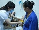 Hà Nội: Cặp song sinh 11 tháng tuổi mắc sởi với biến chứng nguy hiểm