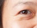 Thượng vàng hạ cám thị trường phẫu thuật thẩm mỹ Mắt ở Việt Nam