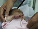 Bé 30 tuần tuổi bị nhiễm trùng, hoại tử được cứu bằng phương pháp mới