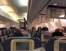 Hành khách bị chảy máu la liệt vì sai lầm khó tin của phi công