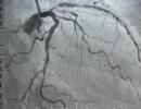 7 dấu hiệu thầm lặng của tắc động mạch
