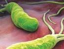 Những hiểu lầm thường gặp về vi khuẩn HP gây bệnh dạ dày