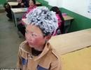 """Nghi vấn cậu bé """"tóc đóng băng"""" Trung Quốc bị ăn chặn tiền ủng hộ"""