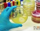 Đề kháng kháng sinh - hành động ngay bây giờ hoặc không bao giờ