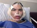 """Gương mặt sưng phồng đáng sợ của Rodrigo Alves sau ca """"dao kéo"""""""