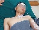 Nổ pháo, hàng loạt trường hợp nhập viện cấp cứu trong đêm giao thừa
