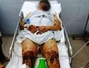 Vụ Việt kiều bị tạt axit:  Sức khỏe nạn nhân chuyển biến tốt