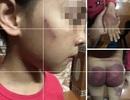 Công an vào cuộc vụ cháu bé bị bố đẻ hành hung