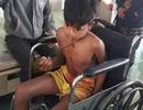 Trượt chân, một thiếu niên bị mũi tên sắt đâm sâu vào ngực