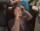 Tài tử Châu Nhuận Phát bị khâu 5 mũi ở đầu
