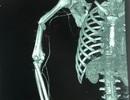 Bị máy trộn bê tông cuốn, bệnh nhân suýt tháo khớp vai