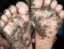 Rùng mình bàn chân bé gái 10 tuổi bị bệnh lạ sau khi đến Brazil
