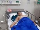 Quảng Bình: Lên cơn đau bụng dữ dội mới biết bị vỡ u gan