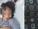 Quảng Ninh: Xác minh vụ nữ sinh bị đánh hội đồng đến tụ máu đầu