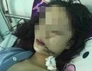 Thiếu nữ 18 tuổi bị 3 cô gái xông vào khống chế, dùng dao rạch mặt