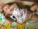 Bố mẹ nghèo, bé 3 tháng tuổi trên đảo Lý Sơn khốn khổ với hậu môn nhân tạo