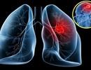 Tin thầy bói, 1 bệnh nhân suýt mất 100 triệu đồng để chữa ung thư
