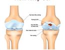Bệnh viêm khớp gối: Nguyên nhân và cách điều trị hiệu quả