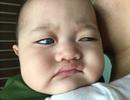Mắc bệnh hiếm gặp, bé 1 tuổi nguy cơ mù vĩnh viễn vì... không đủ tiền phẫu thuật