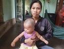 Xót xa cảnh bé trai 10 tháng tuổi đau đớn chống chọi với bệnh