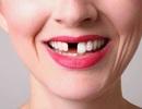 Công nghệ khiến răng tự mọc lại sau khi rụng: Sẽ không còn ai phải trồng răng!